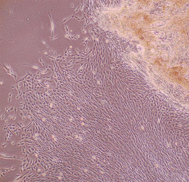 肌の再生医療(線維芽細胞)